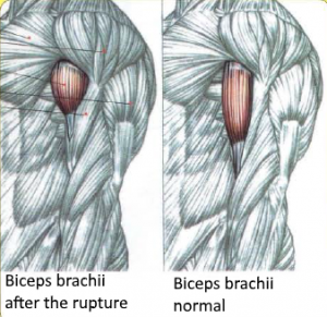 biceps brachiitTendon rupture