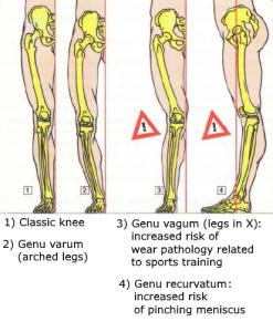 anatomy body squat morphology knee big belly