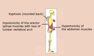 Kyphosis Hypotonicity erector spinae muscles lumbar vertebral arch Hypertonicity abdomen