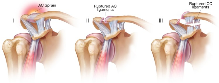 Acromioclavicular Joint Injury • THE stephane ANDRE