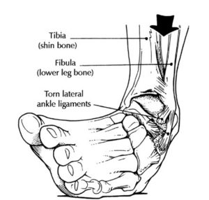 ankle sprain inversion lateral