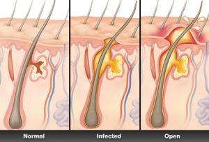 mrsa infection anatomy