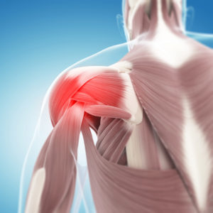 rotator cuff tear anatomy shoulder