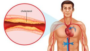 cholesterol heart disease clog arteries