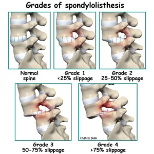 spondyloystesis