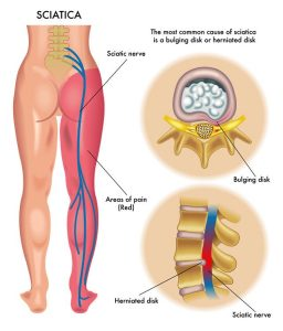 disc herniation sciatic nerve