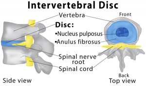 disc herniation intervertebral