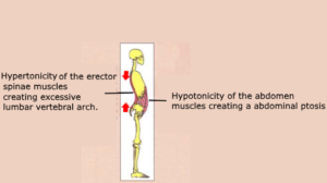 Hypertonicity erector spinae muscles lumbar vertebral arch Hypotonicity abdominal ptosis