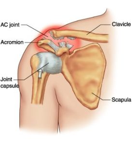 acromioclavicular joint injury
