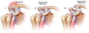 acromioclavicular joint injury type grade