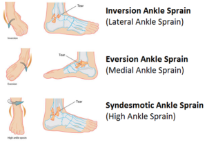 ankle sprain inversion eversion syndesmatic lateral medial high