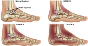 ankle sprain stretch injury grade