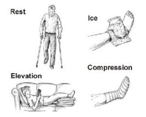 ankle sprain rice rest ice compression elevation