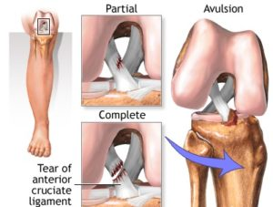 anterior cruciate ligament injury tear