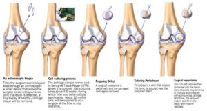 articular cartilage injury treatment