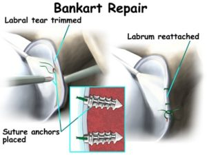 shoulder dislocation treatment surgery bankart repair