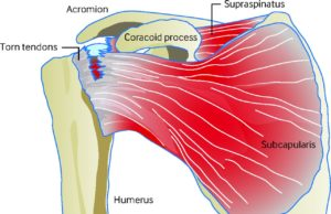 rotator cuff tear anatomy
