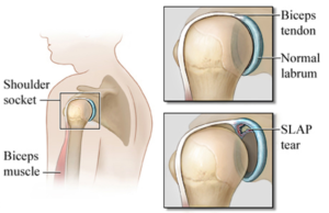 slap tear anatomy shoulder