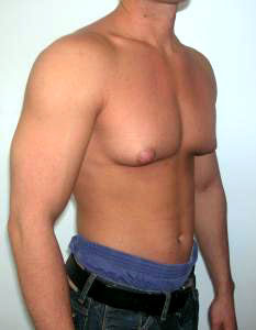 sport injury steroids performance enhancing drug side effect gynecomastia